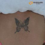 蝶のタトゥー除去