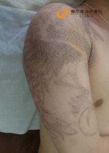 腕のタトゥー除去