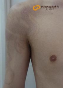 腕のタトゥー除去5