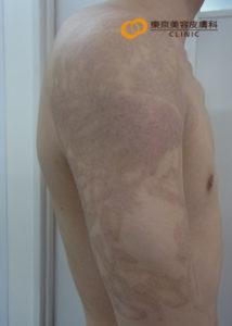 広範囲のタトゥー除去6