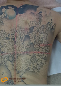 背中一面のタトゥー除去方法