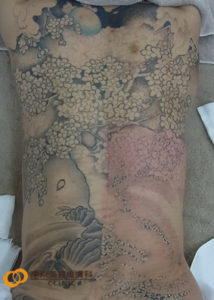 背中のタトゥー除去