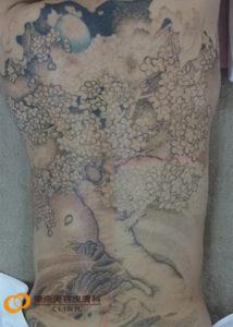 背中のタトゥー除去方法
