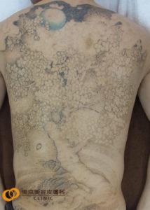 背中一面のタトゥー除去