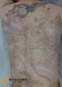 背中広範囲のタトゥー除去