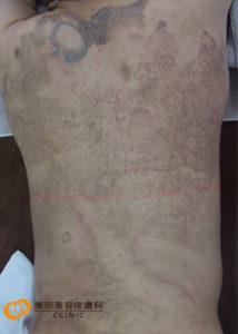 背中刺青除去方法